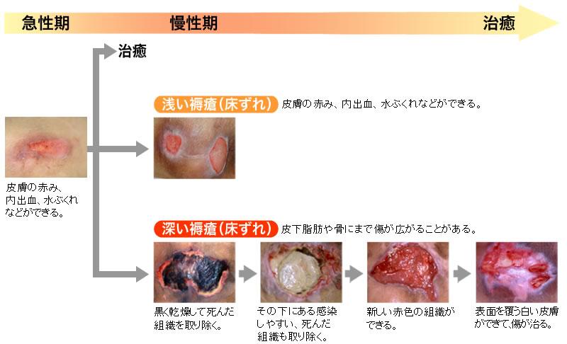 画像 床ずれ 床ずれ(褥瘡)は予防できる!しっかり対処して大切な人の肌を守ろう