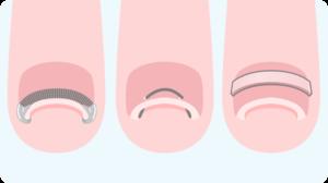 巻き爪治療の主流となる「矯正治療」