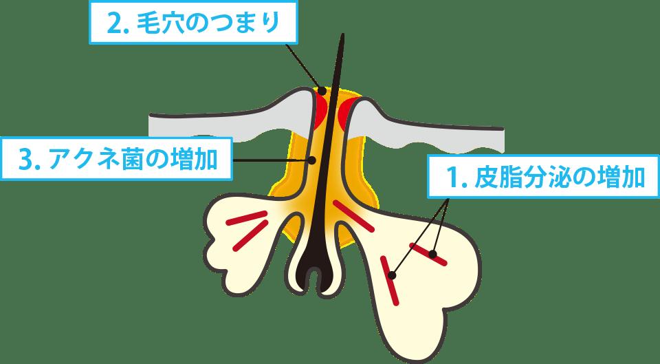 1.皮脂の分泌の増加 2.毛穴のつまり 3.アクネ菌の増加