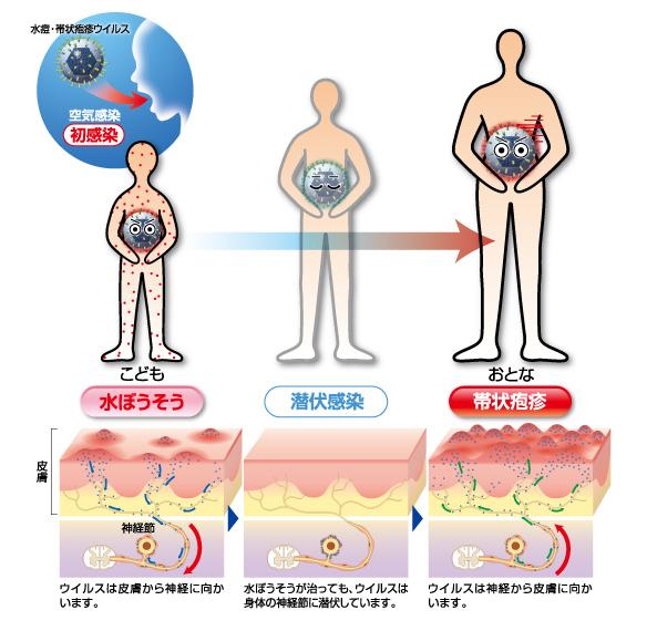 https://www.maruho.co.jp/kanja/taijouhoushin/r2v4gr0000000hjk-img/img_disease2_1.jpg