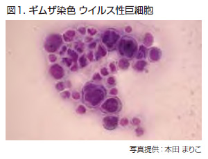 図1. ギムザ染色 ウイルス性巨細胞