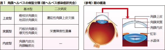 表1 角膜ヘルペスの病型分類(眼ヘルペス感染症研究会)