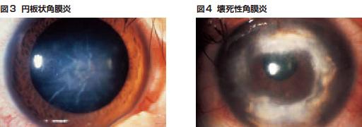 図3 円板状角膜炎/図4 壊死性角膜炎