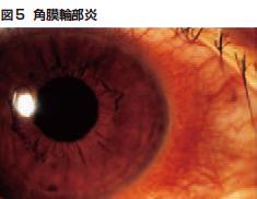 図5 角膜輪部炎