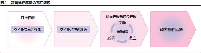 図1 顔面神経麻痺の発症機序