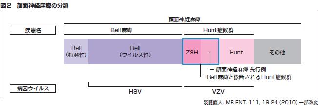 図2 顔面神経麻痺の分類