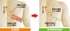 痛みの変化(急性期痛から帯状疱疹後神経痛)