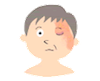 帯状疱疹(顔)