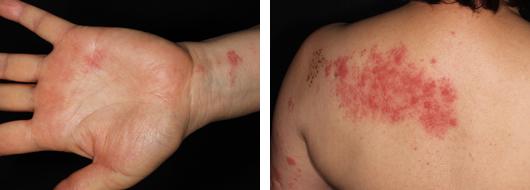 写真1・2 離れた部位に同時に出現した帯状疱疹(Th1領域)
