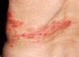 写真3 もう一歩の例 皮疹の発現部位がわかりにくい