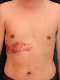 写真4 よい例 皮疹の発現部位、分布の様子がよくわかります