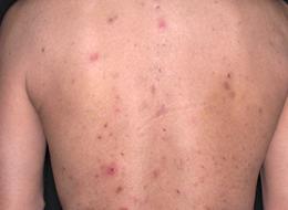 写真5 よい例 帯状疱疹の散布疹