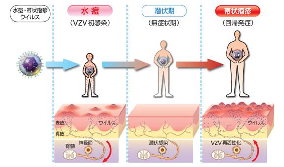 潜伏感染と再活性化