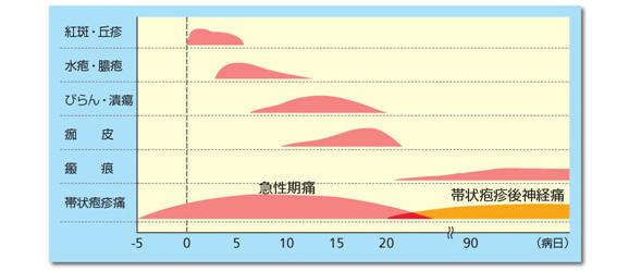 出典:新村眞人;感染・炎症・免疫, 31(4), 295(2001)より一部改変