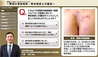 臀部の単純疱疹:帯状疱疹との鑑別