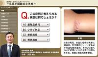 小児手関節の小水疱