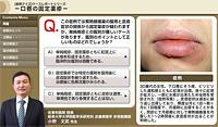 口唇の固定薬疹