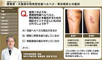 腰臀部・大腿部の再発型性器ヘルペス:帯状疱疹との鑑別