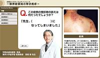 頸神経領域の帯状疱疹