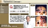 眼合併症を生じる帯状疱疹