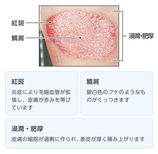 乾癬 治療