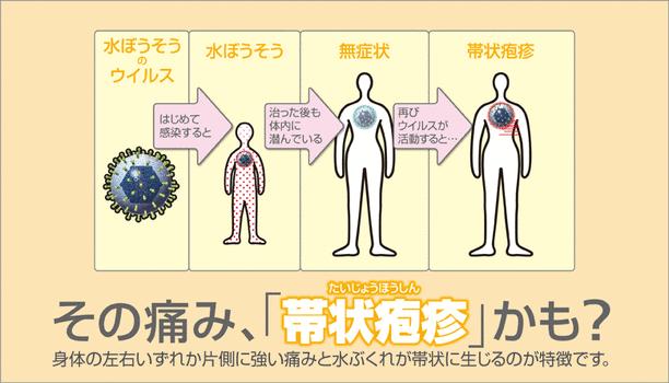 その痛み、「帯状疱疹」かも?